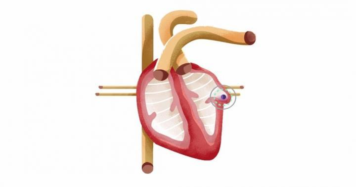 LAA Blood Clot and Stroke